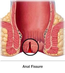 Fissure Treatment, Clinic | Surgeon | Laser Surgery