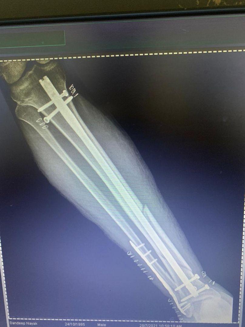 bone-fracture-treatment-in-bhubaneswar