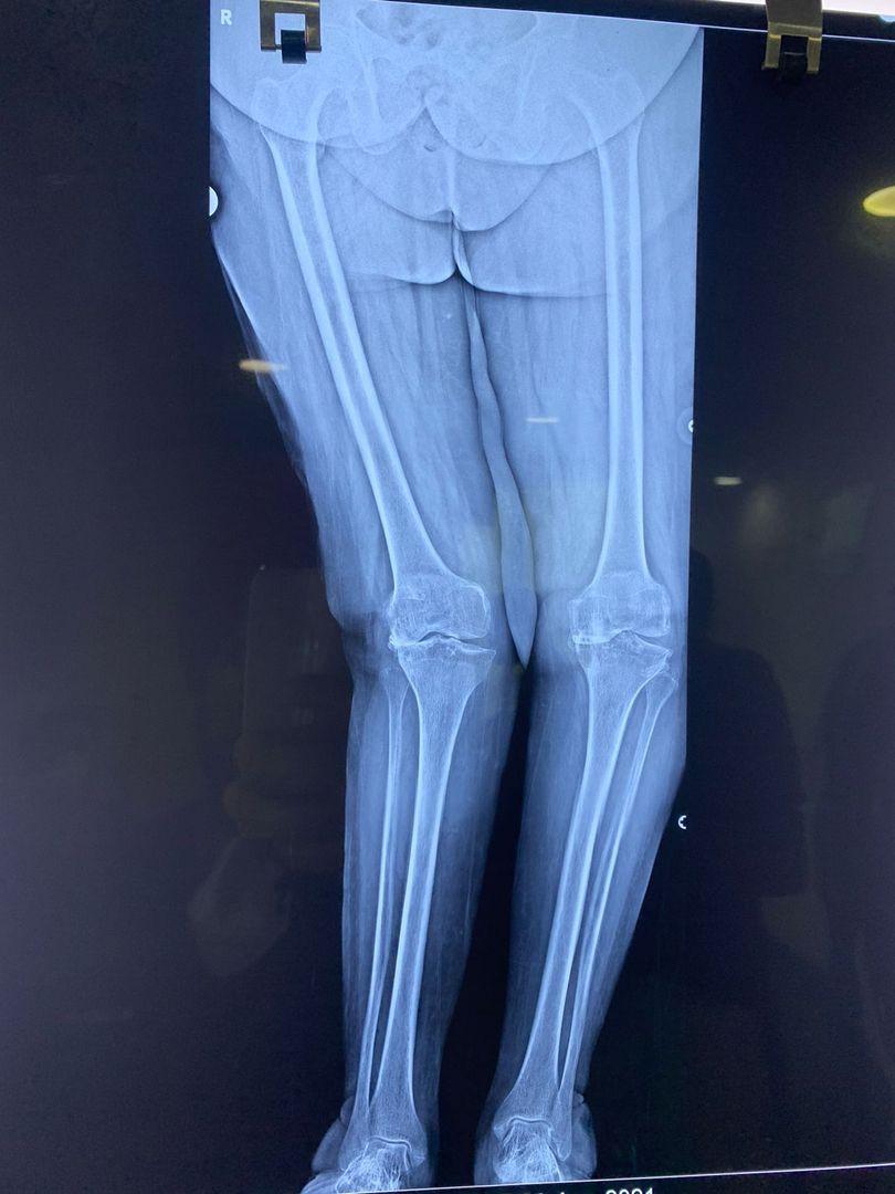 Knee deformity
