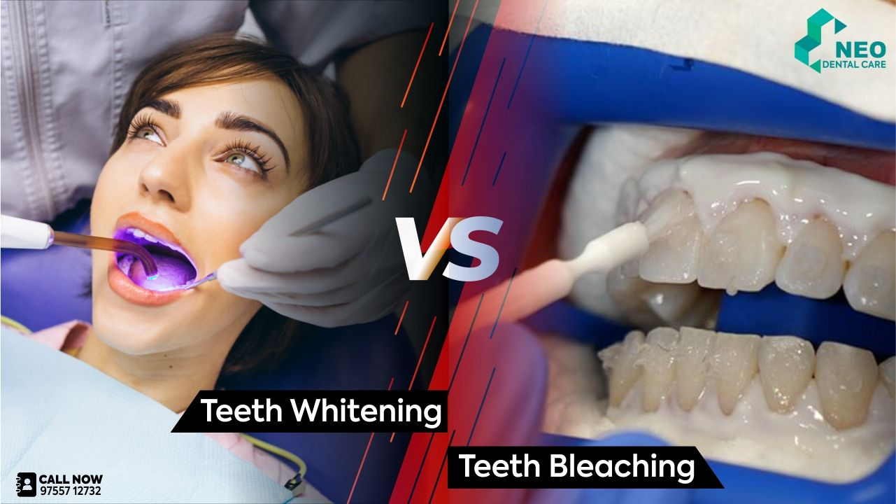 Difference between Teeth Whitening and Bleaching