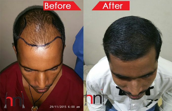 Before - After Image