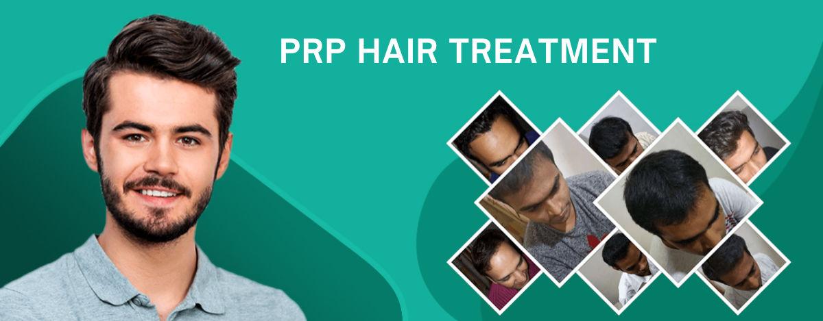 Best PRP Hair Treatment in Surat