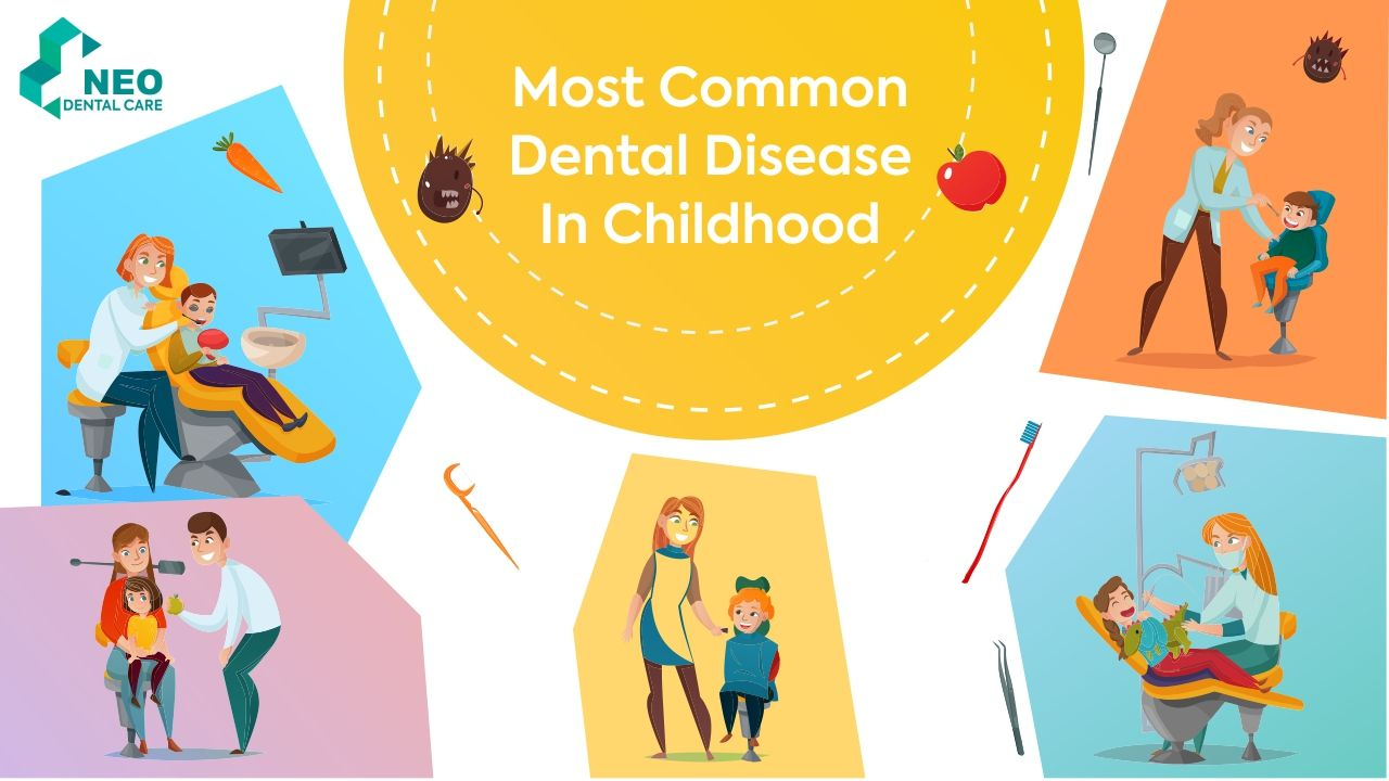 Most Common Dental Disease In Childhood