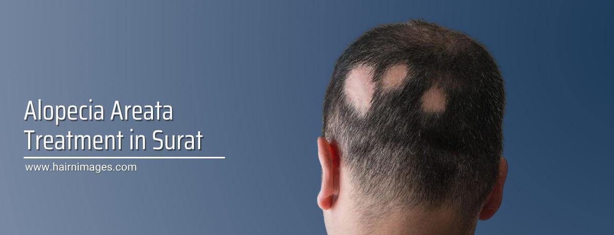 Patchy Hair loss