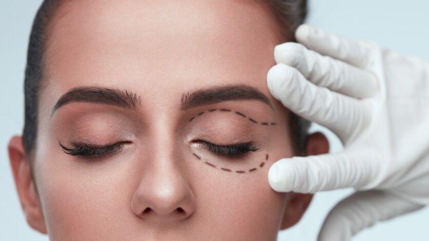 Eyelid Surgery in Jaipur