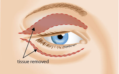Eyelid Plastic Surgery Knoxville   Blepharoplasty Maryville  Drs. Campbell,  Cunningham, Taylor, & Haun
