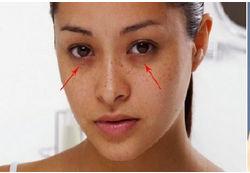 EYE Rejuvenation Treatments, Eye Treatment - Grow & Glow Health Care,  Bengaluru | ID: 16688841030