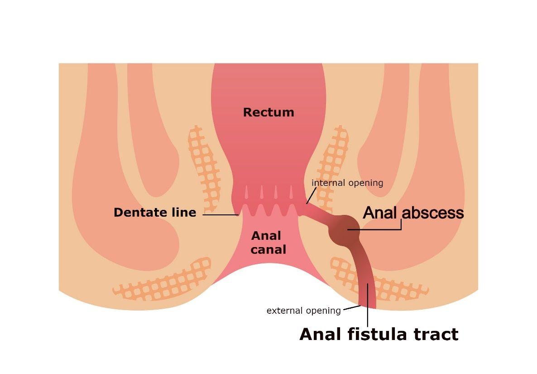 What is Anal Fistula? | Anal Fistula Treatment | WSM Medic