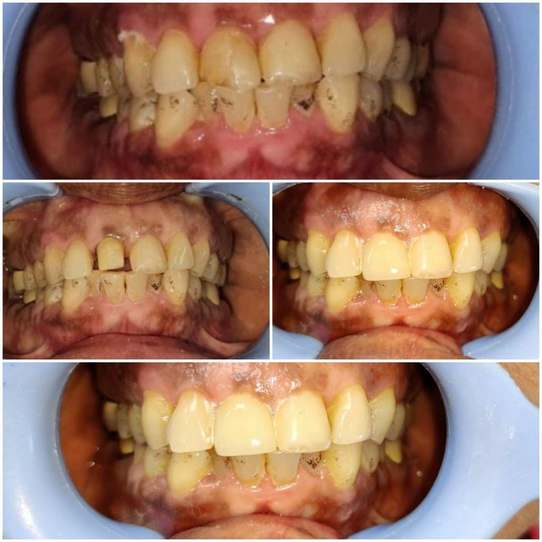 Teeth Cleaning in Noida - Neo Dental Care