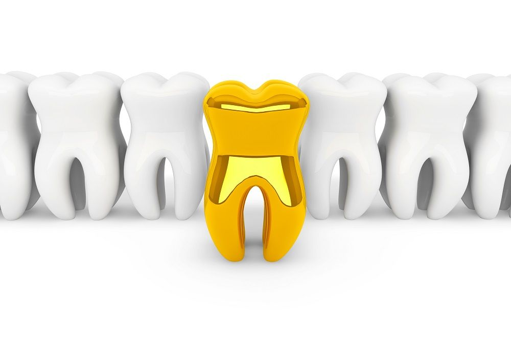 Gold Tooth implant by Direct2lab
