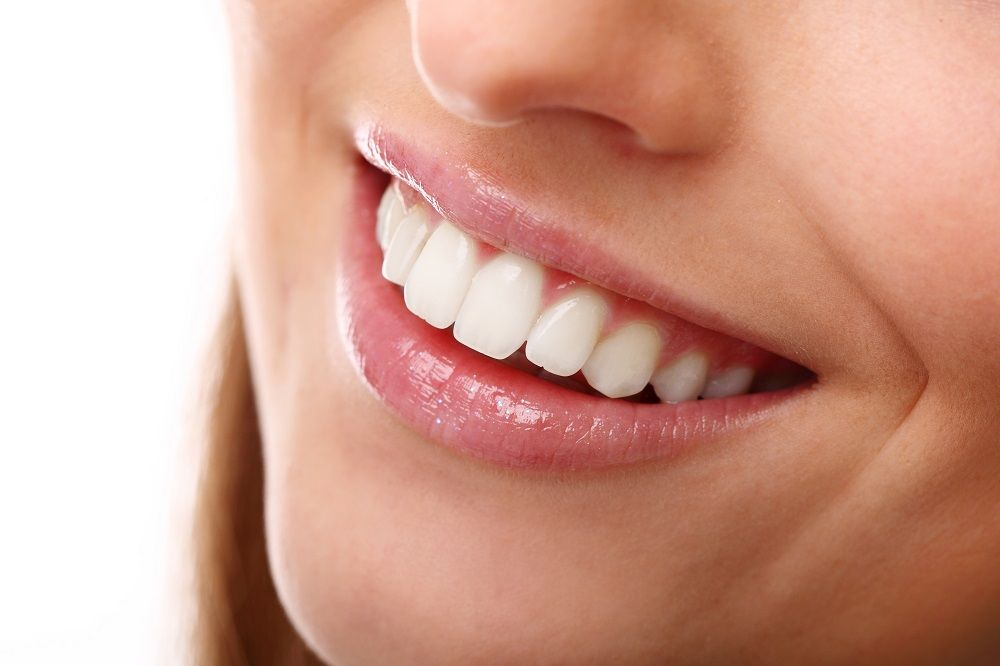 What are veneers and why you should use them