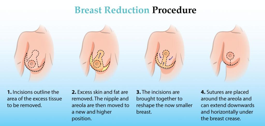 breast-reduction-dubai