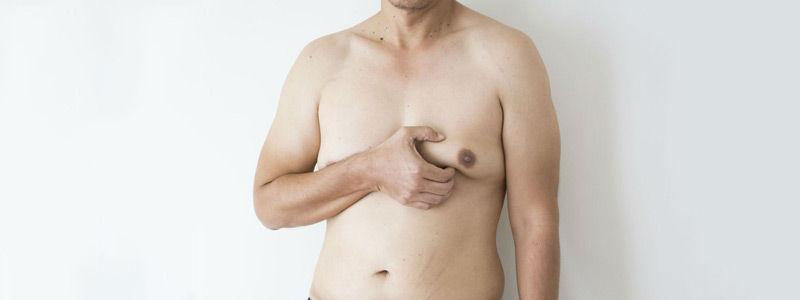 gynecomastia in dubai