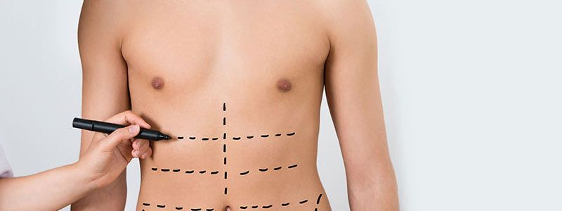 Liposuction becomes top cosmetic surgery procedure