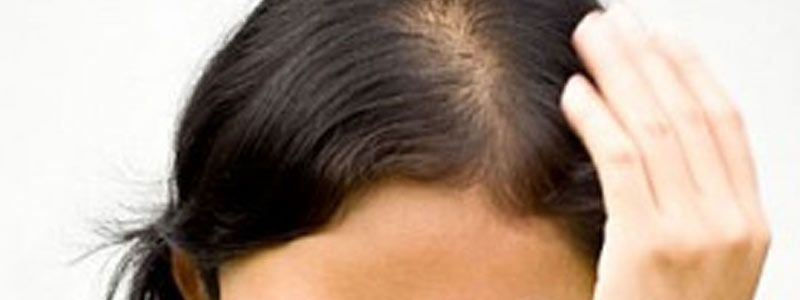 Is Hair Transplant Recommended for Teenagers?