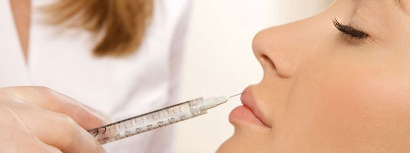 Filler injections – perfect way to get youthful skin