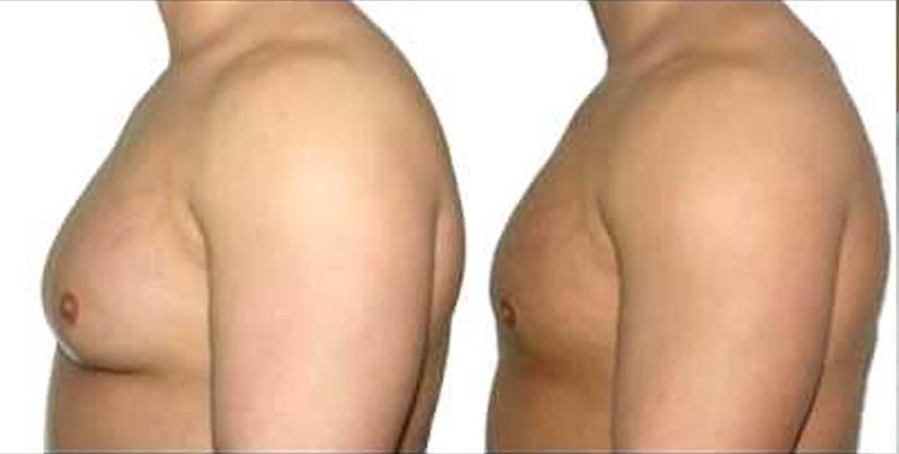 Overview of Gynecomastia