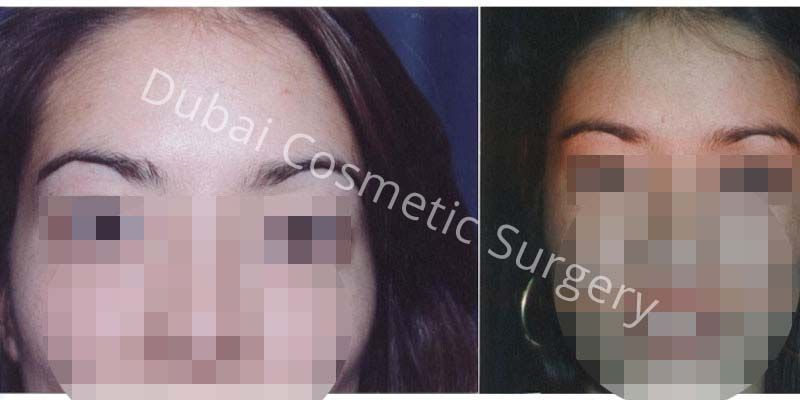 Eyebrow Lift Results 6