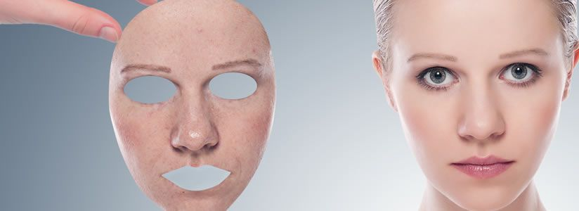 Benefits of Facelift