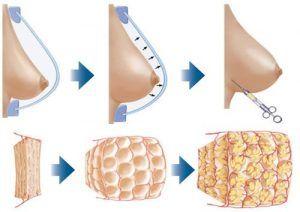 BRAVA Breast Enlargement