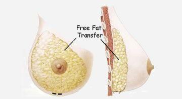AFT Breast Augmentation