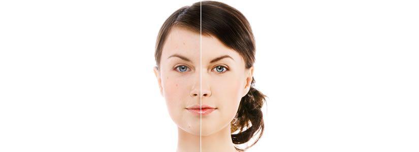 Red Spots & Acne Scars Treatment Dubai