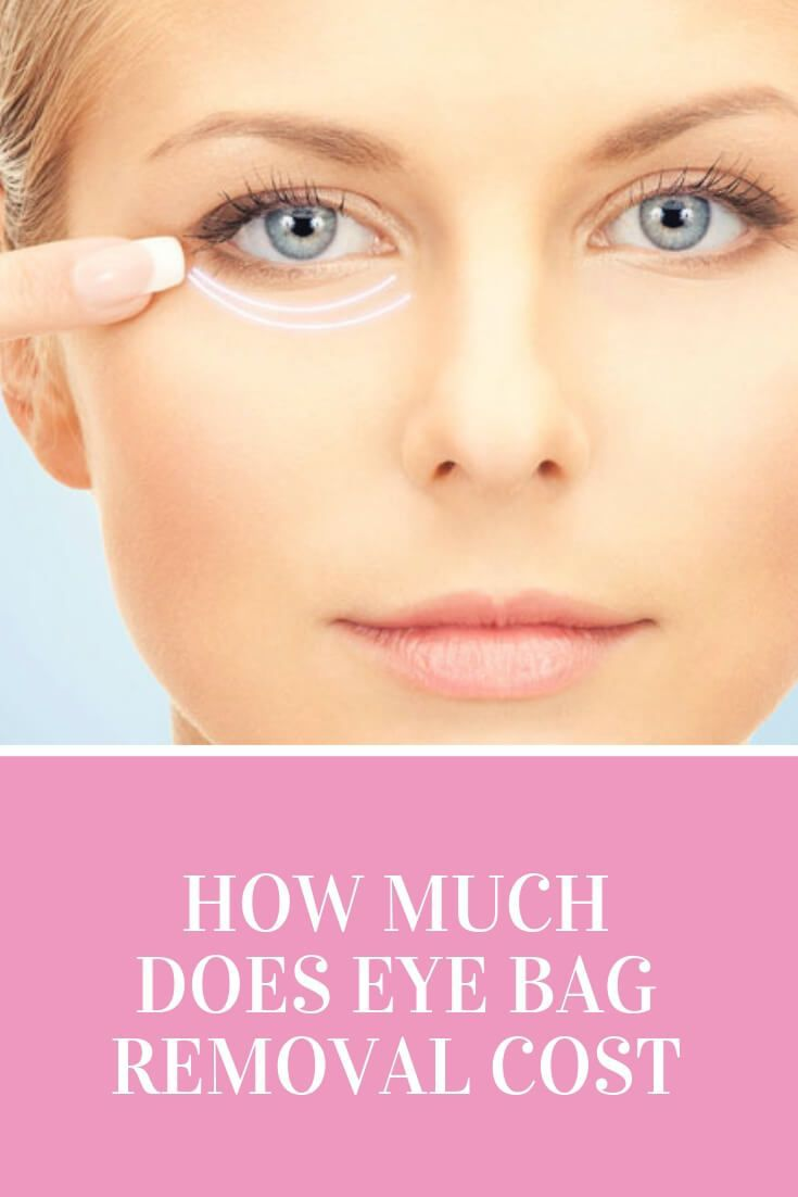 How Much Does A Lift Kit Cost >> How Much Does Eye Bag Removal Cost | Dubai Cosmetic Surgery®