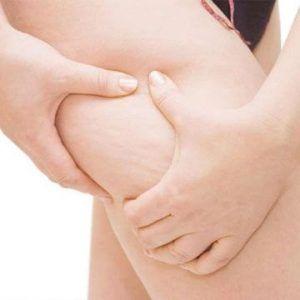 Cellfina Skin Treatment for Cellulite