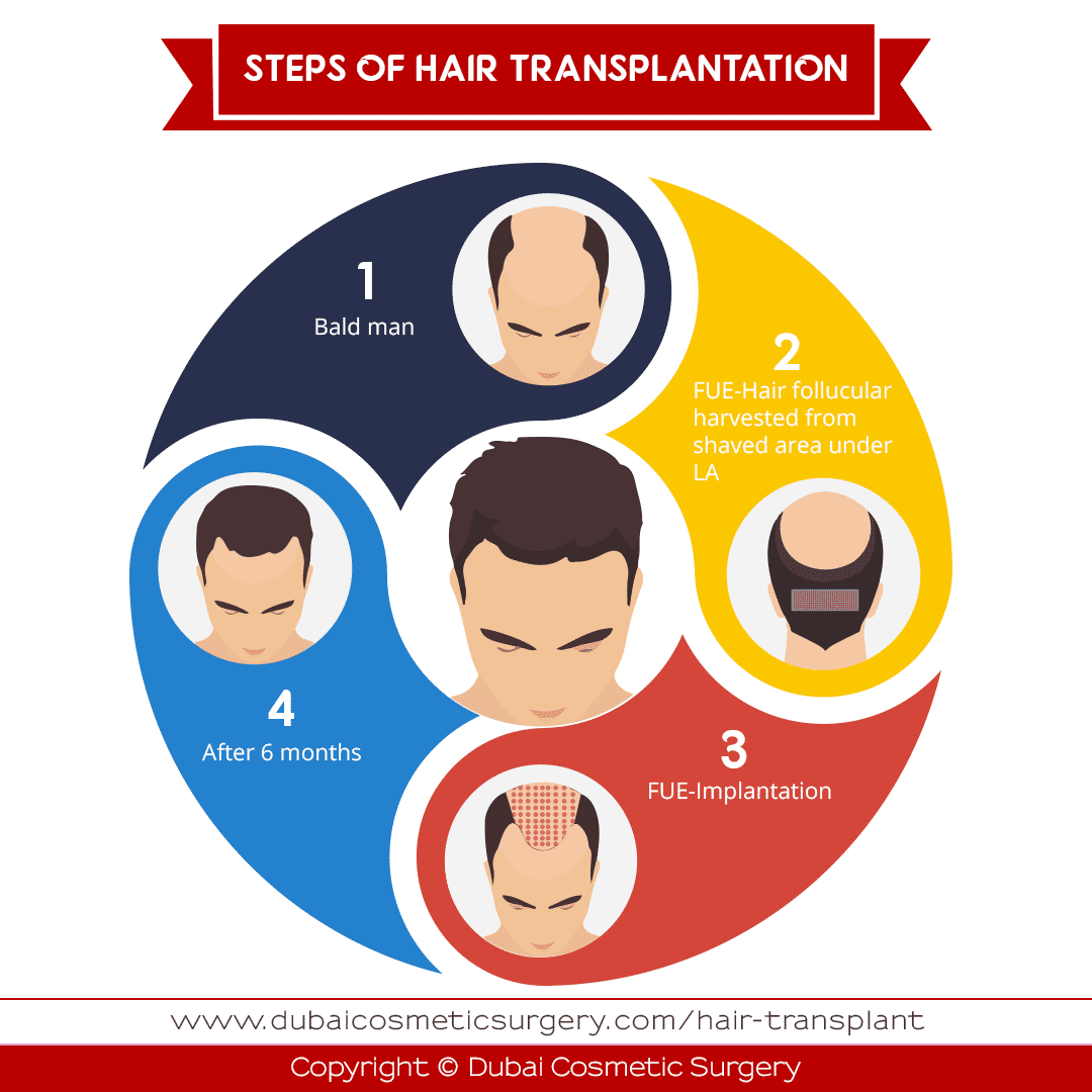 hair transplant infographic