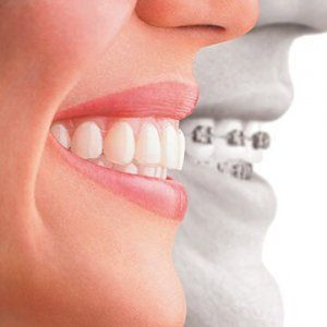 Orthodontic Treatment in Dubai/Abu Dhabi