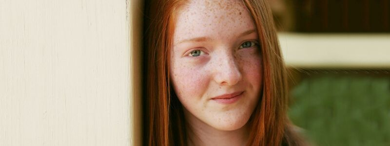 Differences Between Freckles And Sun Spots & Their Treatments1