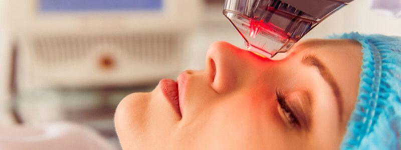 Laser Treatment for Facial Dark Spots
