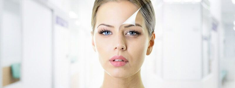 How long does a Chemical Peel Last