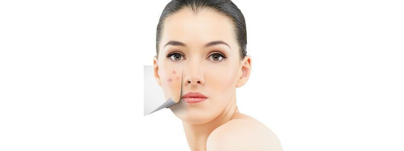 Acne Treatment Cost in Dubai and Abu Dhabi