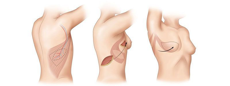 DIEP Flap vs Implants - Breast Reconstruction