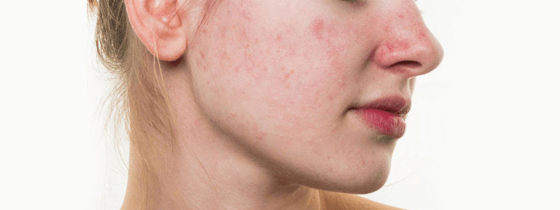 Rosacea Causes and Treatments