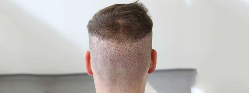 Post-Op Care After FUE Hair Transplant
