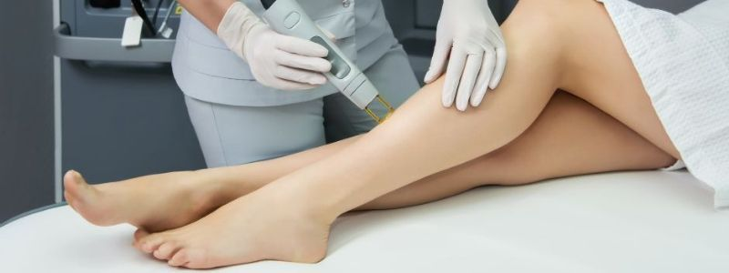 Don't Forget These Top 5 Tips After Laser Hair Removal