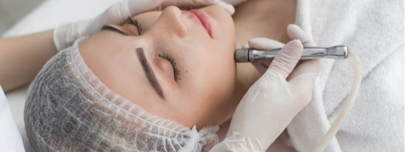 Chemical Skin Peels How Effect In Skin Problems