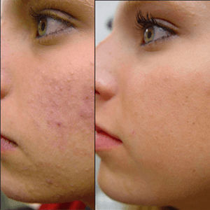 Pigmentation_Treatment