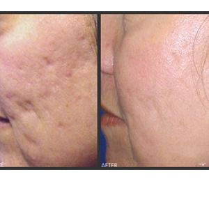 Melasma_Treatment