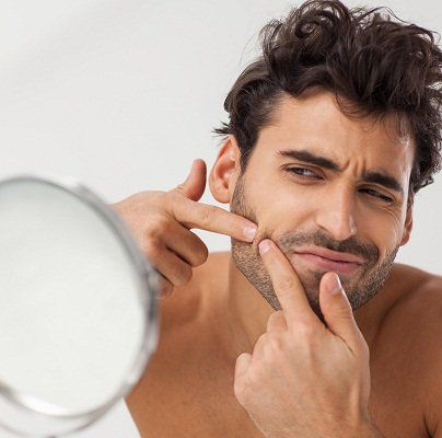 pimples and scar treatment