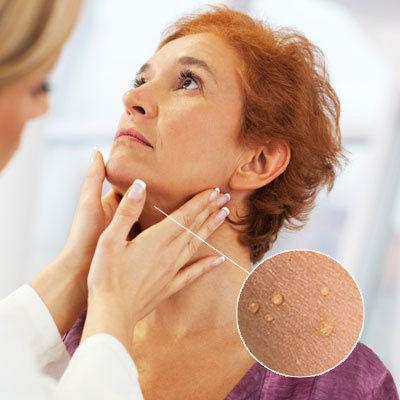 Skin Tag Removal Dubai