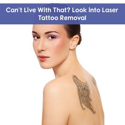Laser Tattoo Removal in Abu Dhabi