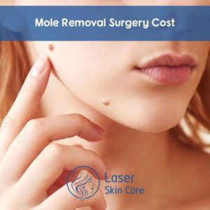 Mole Removal Surgery Cost in Dubai