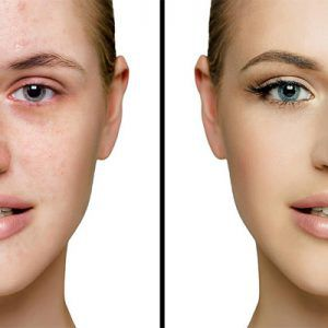 How to Improve Pigmentation on Face