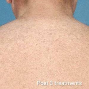 Laser-Hair-Removal-After-1-300x298