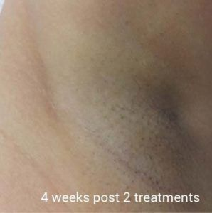 Laser-Hair-Removal-After-4-298x300