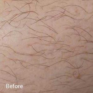 Laser-Hair-Removal-Before-5-300x300