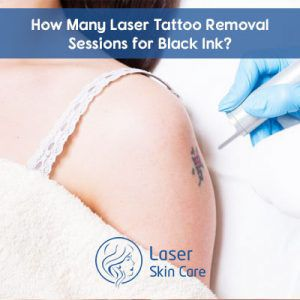How Many Laser Tattoo Removal Sessions for Black Ink?